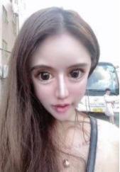 総額1600万円!13歳から100回の美容整形を受けた女性の顔面崩壊が進行